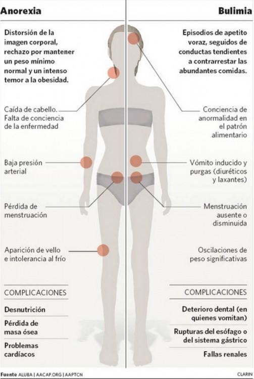 (Qué es bulimia. Efectos en el cuerpo.)