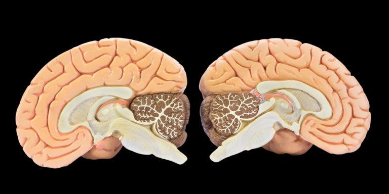 Materia gris - cerebro