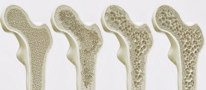 huesos enfermedades osteoporosis